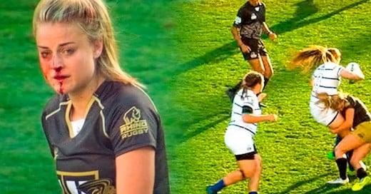 Esta chica se rompió la nariz jugando Rugby, se levantó y siguió como si nada pasara