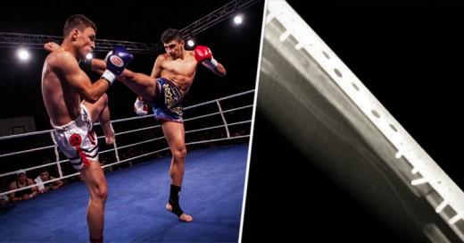 Suspenden a peleador de Muay Thai por luchar varas de Titanio en las espinillas