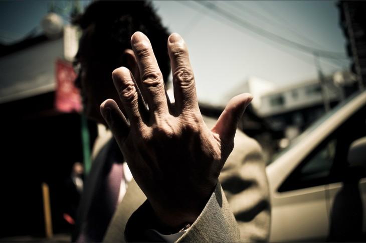 mano de miemro yakuza con cuatro dedos