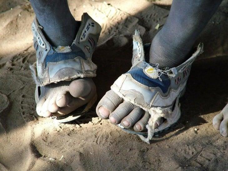 niño pobre con zapatos rotos