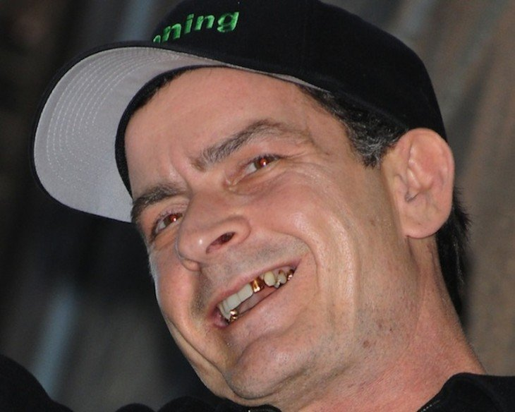 dientes de charlie sheen