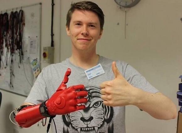chico con prótesis de iron man