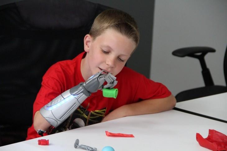 niño con prótesis de star wars