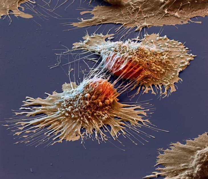 Células de cáncer vistas en microscopio electrónico