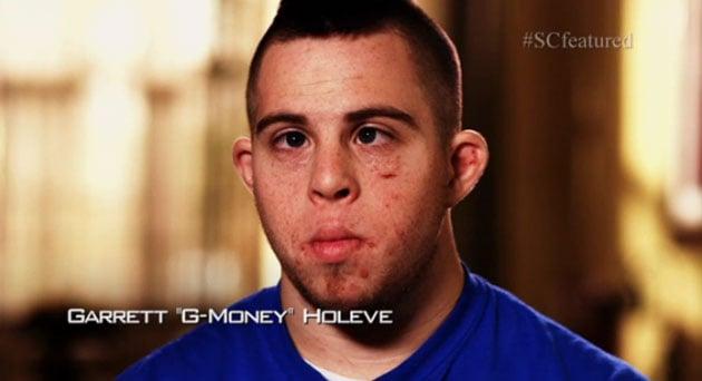 Hombre con síndrome de Down, golpeado