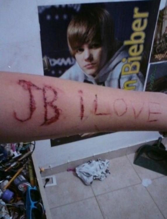 brazo cortado Justin Bieber