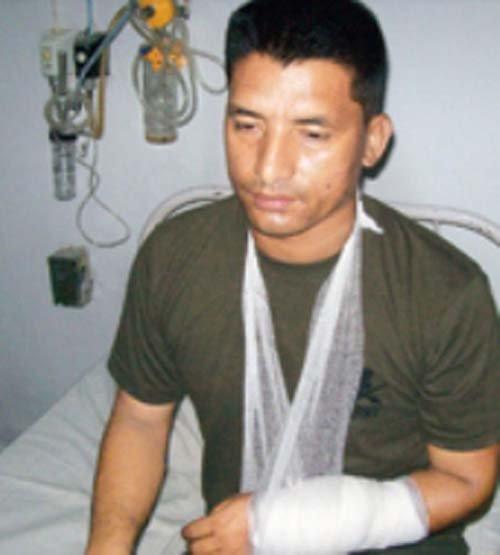 Bishnu Shrestha brazo herido