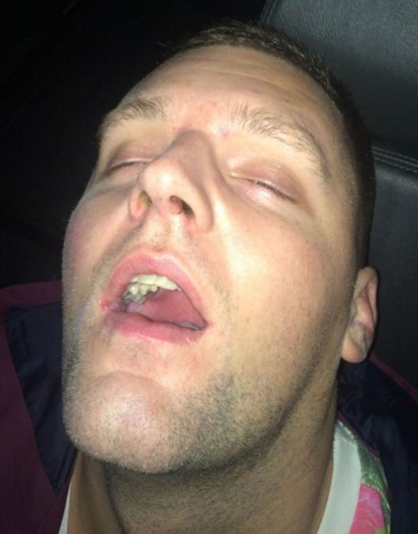 Jonny dormido en taxi