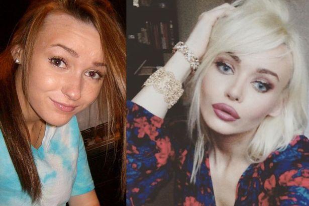 comparación antes y después de Ashton Clarke