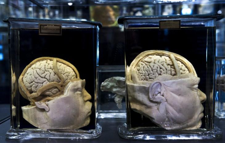 Cerebros reales expuestos