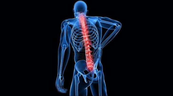 Columna vertebral encorvada