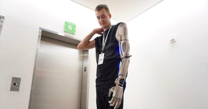 James Young tiene un brazo biónico