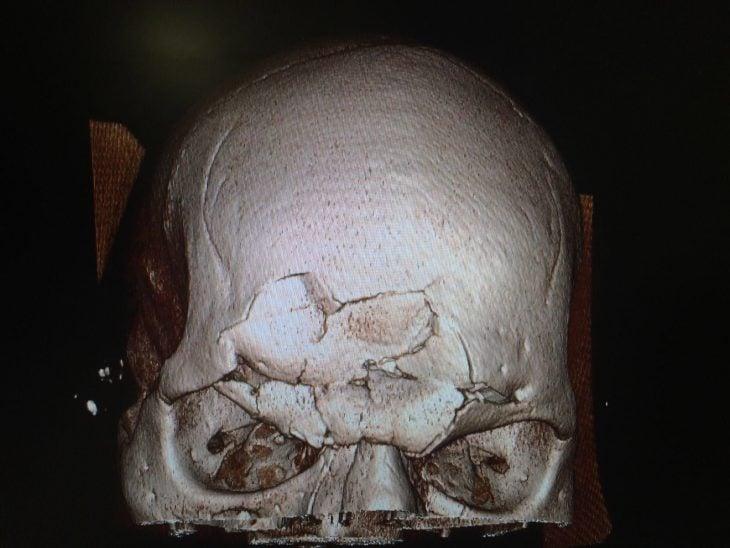 Fractura de cráneo de peleador de AMM