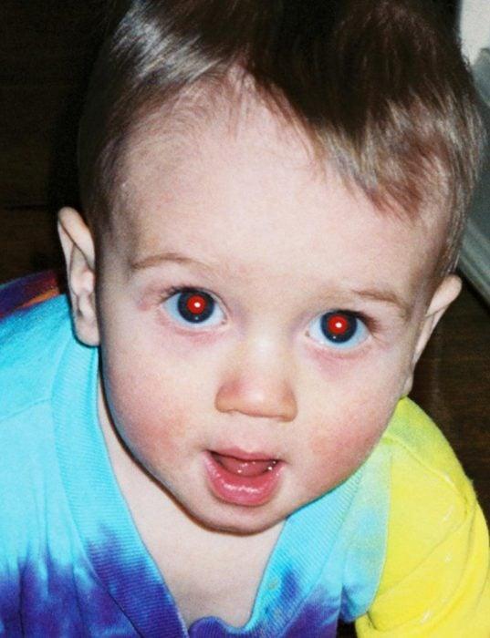 Bebé con ojos rojos