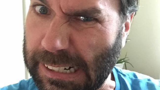 Hombre con barba haciendo muecas