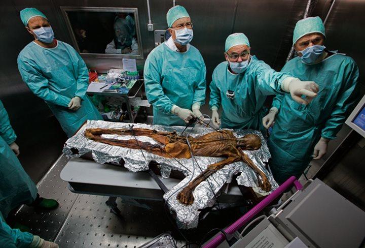 Ötzi siendo investigado