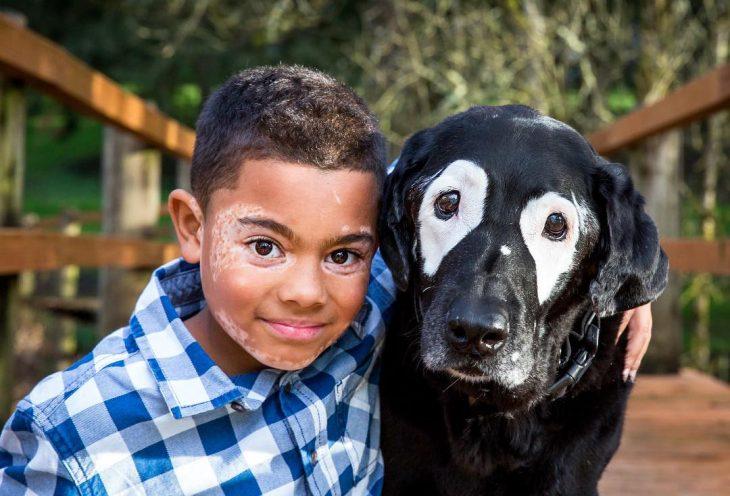 niño vitiligo y perro