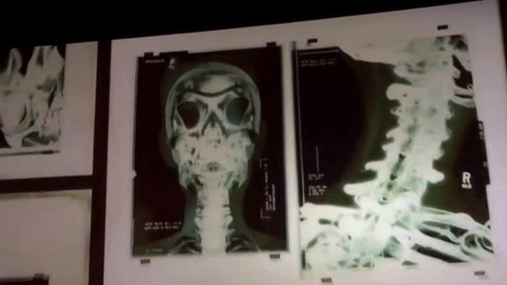 esqueleto logan