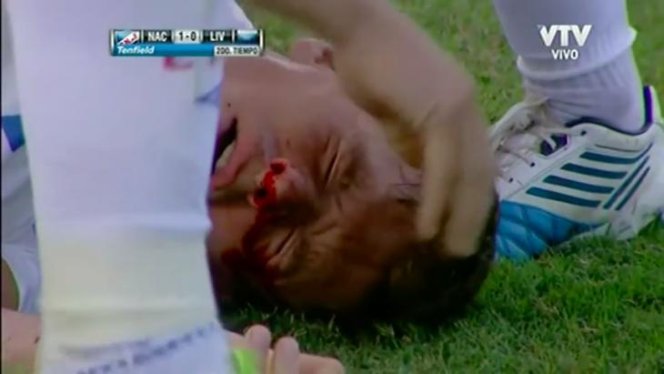 Futbolista golpeado, en el césped