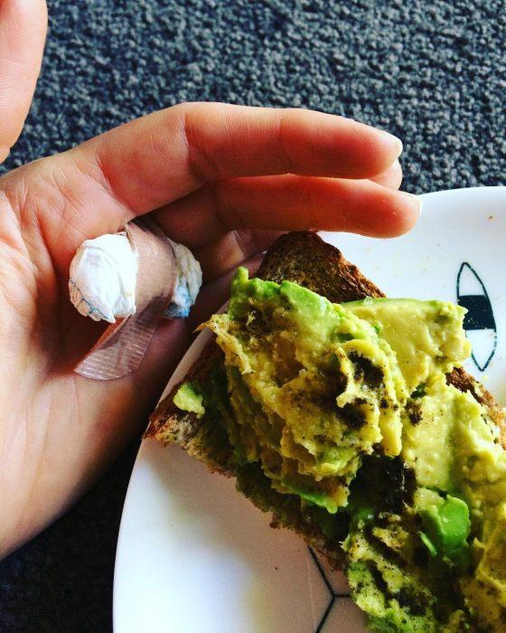 avocado hand 1 heridas por aguacate