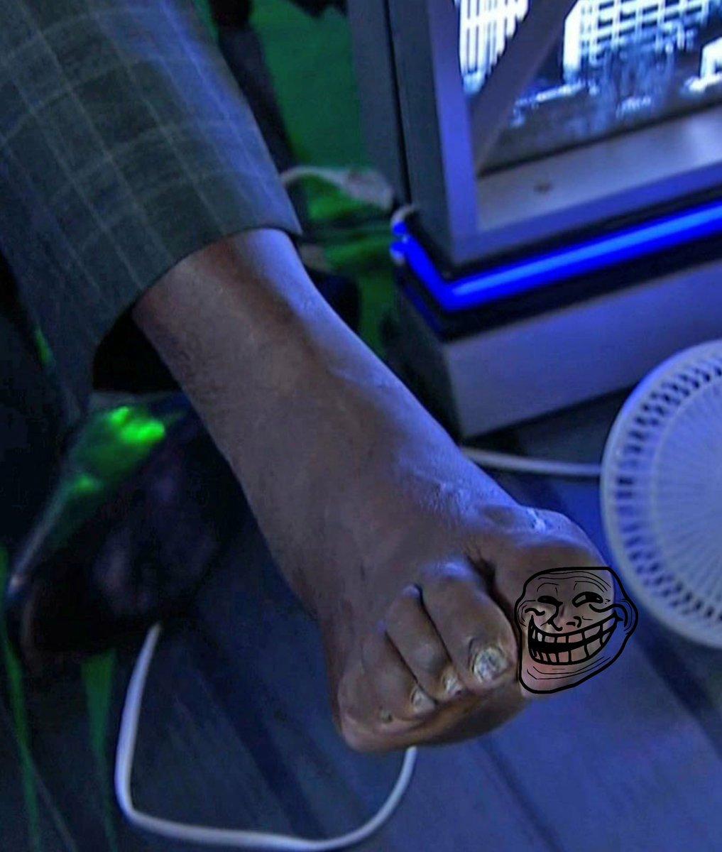El horrible pie de Shaquille O\'Neal roba cámaras; es horrendo