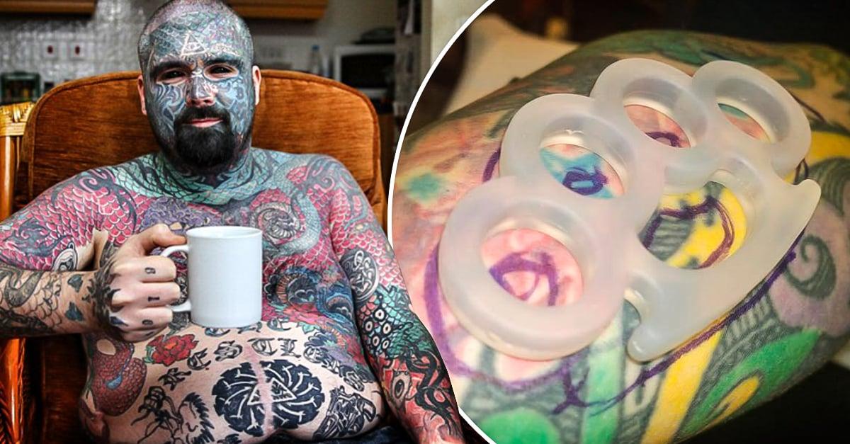 El Hombre Con Más Tatuajes De Uk Podría Perder El Brazo