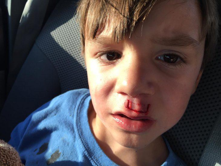 Le explotó en la cara un fidget spinner