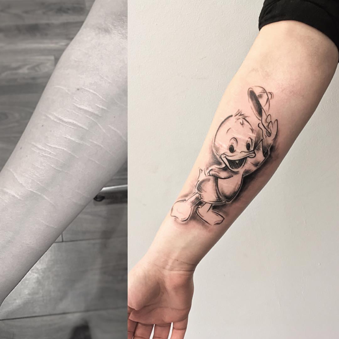 Artista Cubre Con Tatuajes Las Cicatrices De Cortadas Gratis