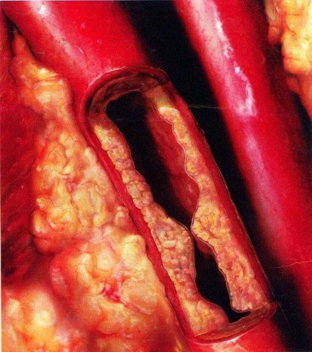 Arteria tapada