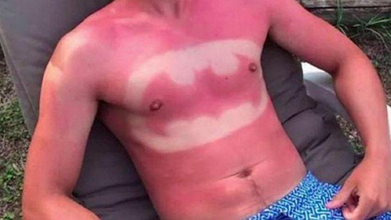 Sunburn art