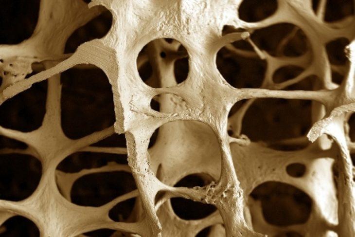 1459852176medicamento osteop 730x487 Estudio revela que Beber tequila ayuda al fortalecimiento de los huesos