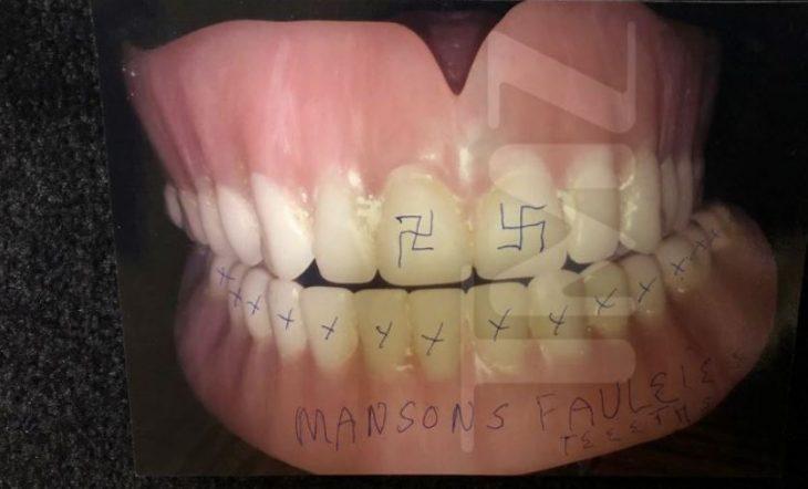 Dentadura Manson