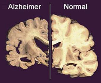 alzhemier