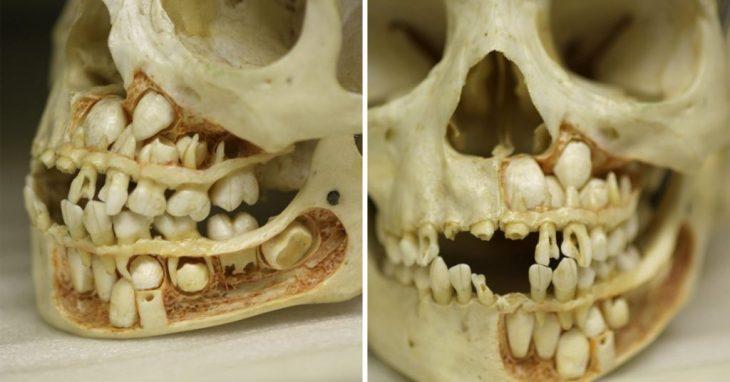 dientes craneo
