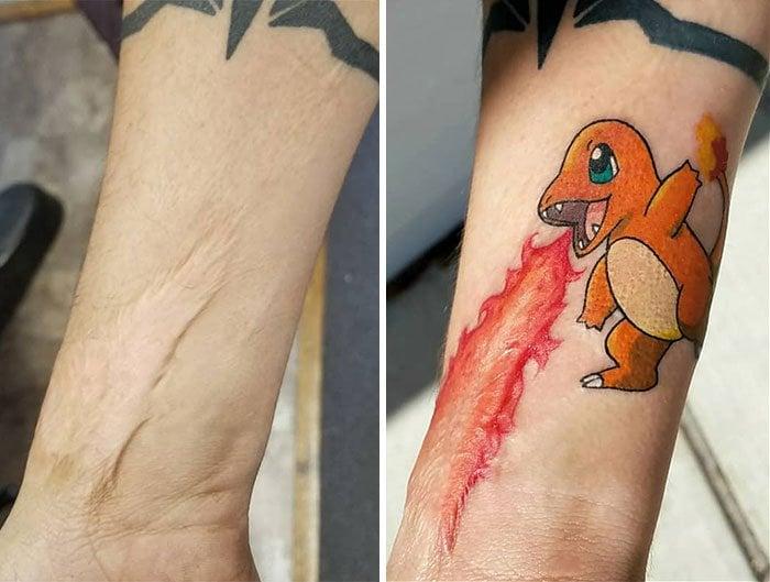 Tatuajes en cicatrices