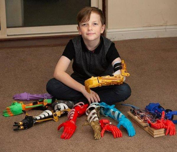jamie miller niño con prótesis brazo 3D
