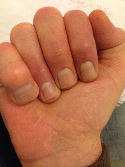 dedo pequeño