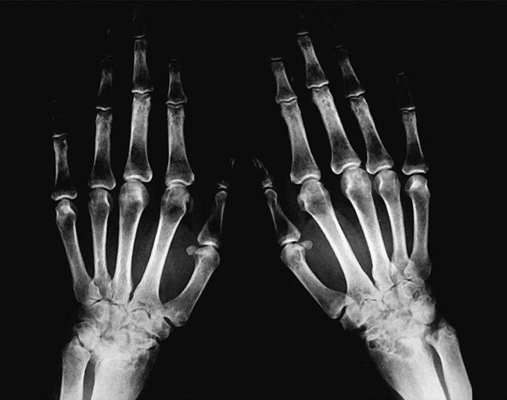 huesos de las manos