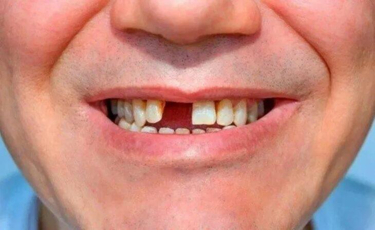 caida de dientes covid